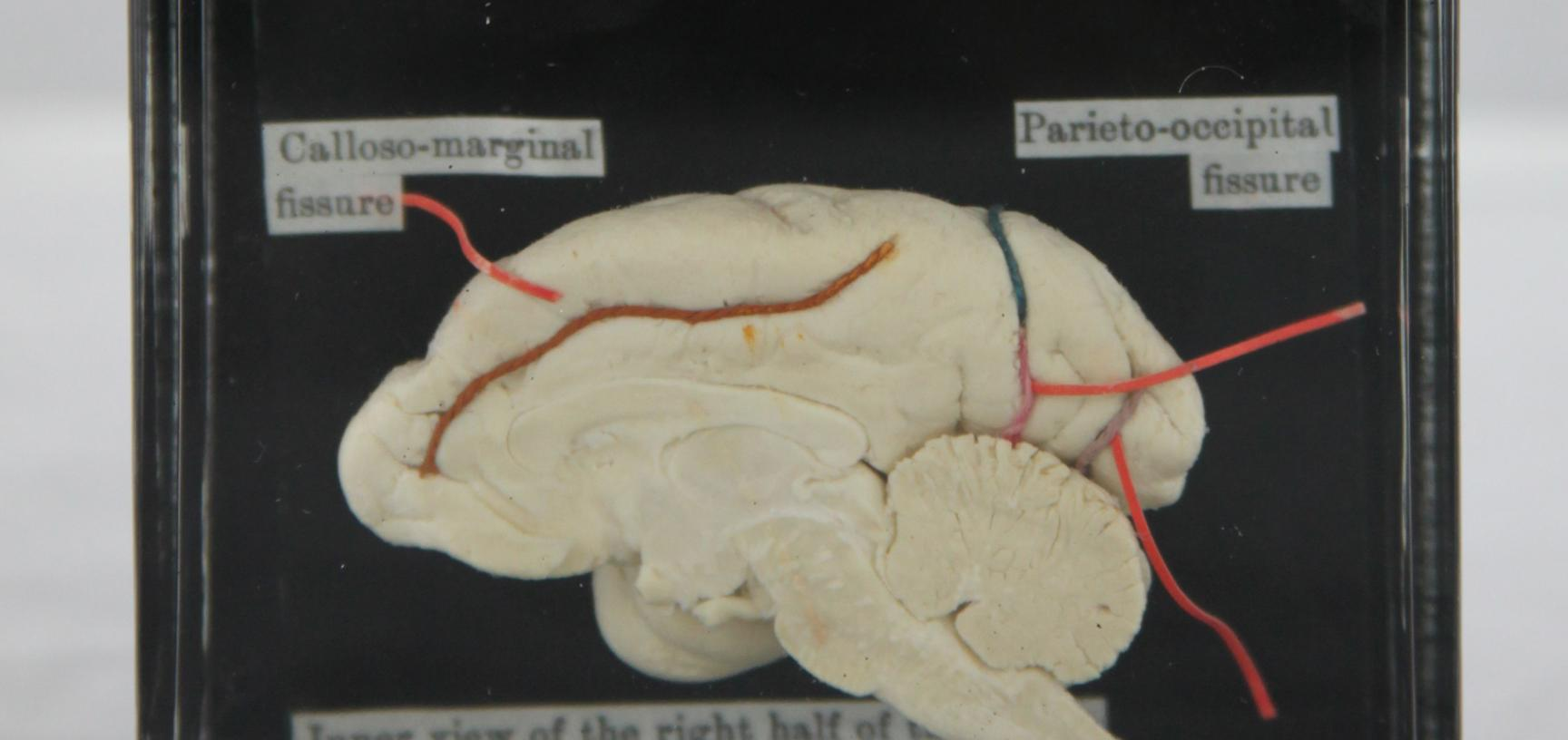 Liontailed Macaque Brain Before Treatment